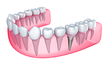 dental implants Lexington, KY